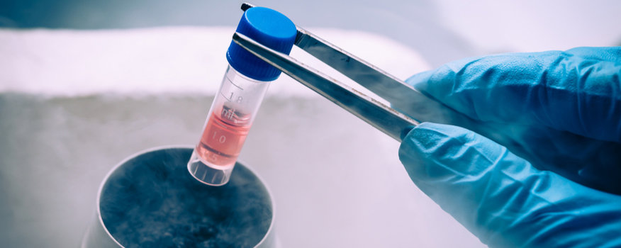 Stem Cell Therapy Washington, MO
